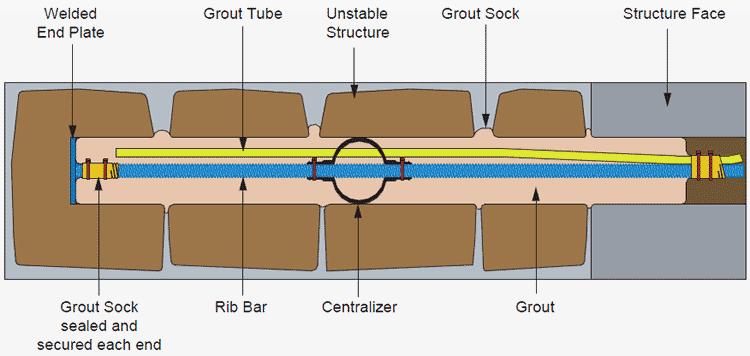 sock anchor diagram